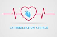 Infographie en vidéo sur la Fibrillation Atriale
