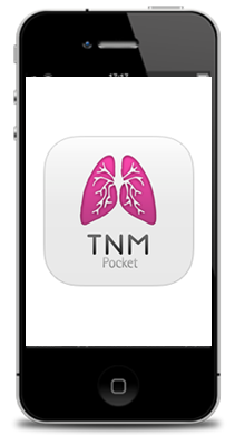 TNM-iphone